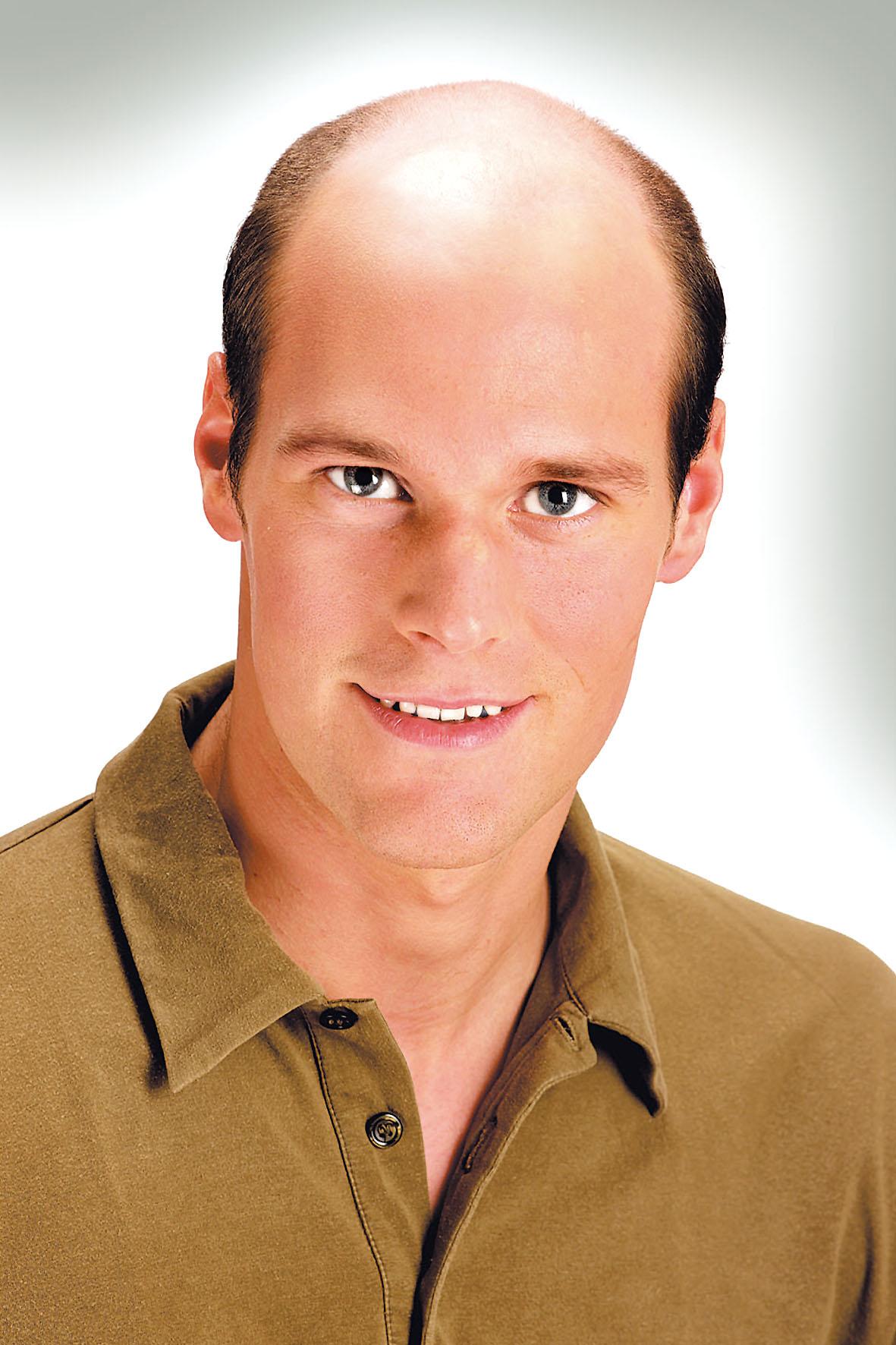 Der Haarausfall aus für der Kieferhöhlenentzündung